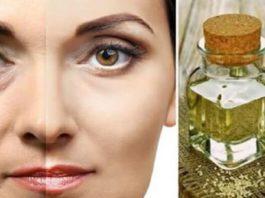 Какие масла убирают морщины вокруг глаз